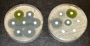Antibiotic impregnated discs placed in petri dishes containing a bacteria culture. Each disc has a different antibiotic it has been soaked in. It demonstrates the relative resistance to antibiotics