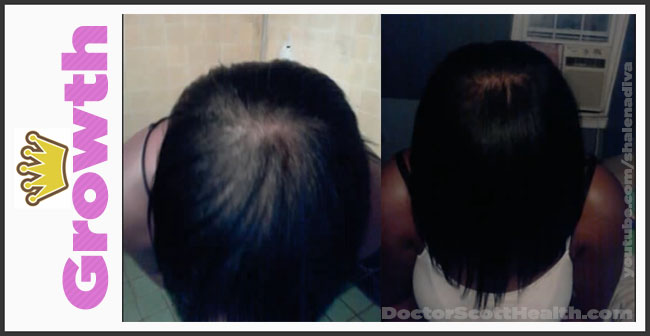 Grow back your crown or other areas where you hair has thinned or balded