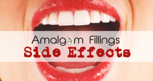Amalgam Fillings Side Effects