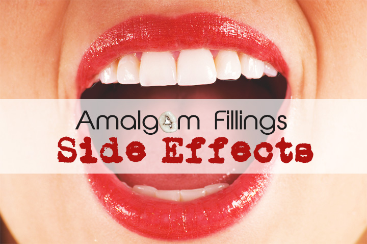 Mercury amalgam fillings side effects can be severe - Mercury is the most toxic element to human health
