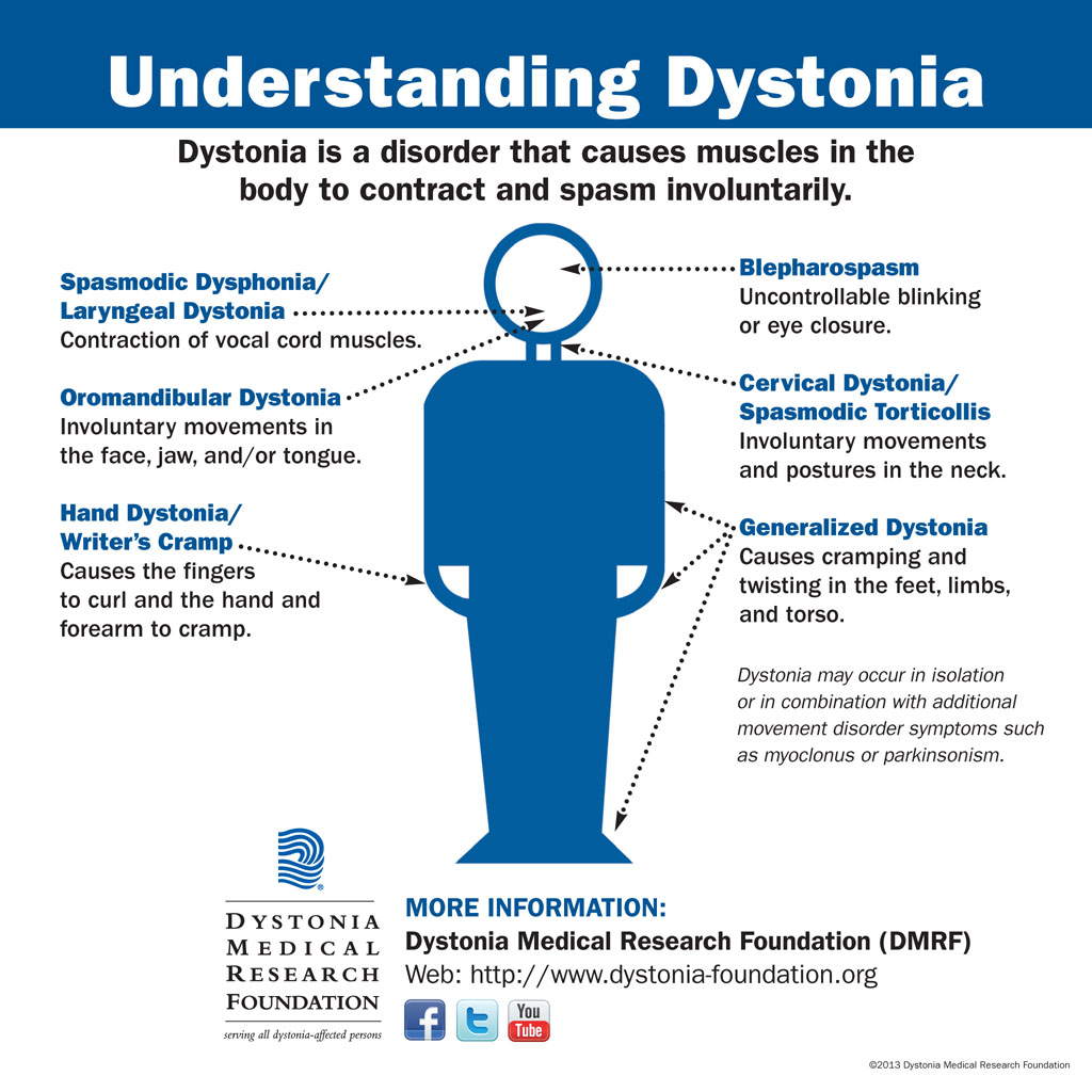 Understanding Dystonia - Graphic chart explaining different forms of dystonia