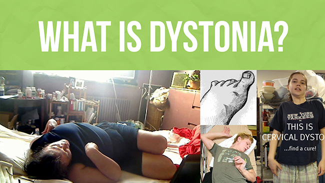 What is Dystonia? Dystonia is an incurable neurological condition that causes involuntary muscle spasms and contractions